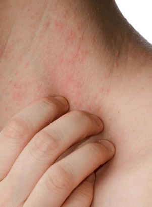 Headaches, Hives and Heartburn: Could Histamine Be the Cause?